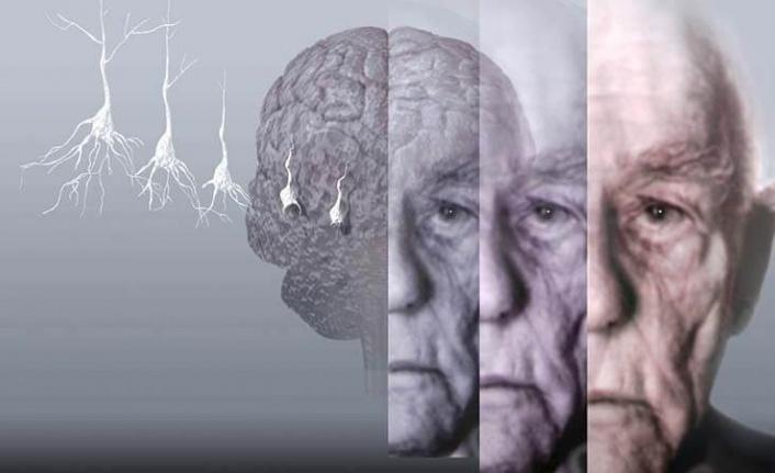 """""""Yaş bağımsız unutkanlık"""" ihmal edilmemeli"""