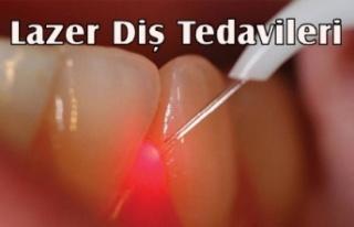 Lazer ile Birçok Diş Problemlerine Son Veriliyor