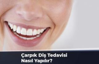 Çapraşık Dişler Nasıl Tedavi Edilir ?