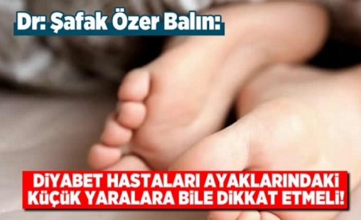 Diyabet hastaları ayaklarındaki küçük yaralara bile dikkat etmeli